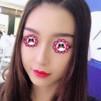 术前我是属于丹凤眼,眼角有点下坠,做了眼综合,做完之后眼睛改善了,漂亮了。