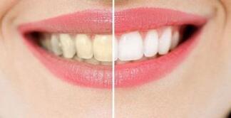 洁牙案例及操作程序步骤