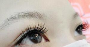 睫毛种植案例 爱美女性的天职
