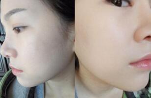 光子嫩肤 让脸上的皮肤重生起来