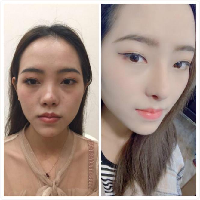 广州华美做的鼻部修复手术,终于摆脱做毁的鼻子了