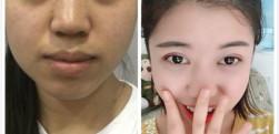 重庆铂生杜亚旭做的双眼皮手术,手术效果分享