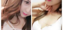 重庆军美自体脂肪隆胸手术术后效果分享