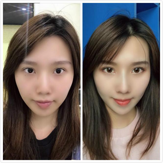 广州紫馨做鼻综合手术效果好不好?术后案例分享