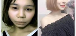 广州紫馨做的综合隆鼻手术,分享手术后的效果给大家