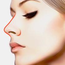 什么是垫鼻子,有什么作用吗