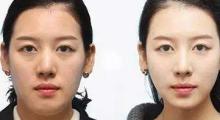 左右脸不对称应该怎么办呢...