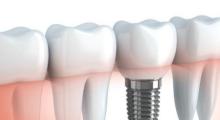 种植牙修复有什么优缺点呢...