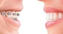 儿童牙齿畸形应该怎么解决呢...
