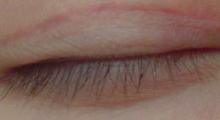 双眼皮增生会消失吗...
