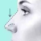 隆鼻修复会比第一次恢复的快吗,可以修复几次呢