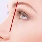 眼窝凹陷应该如何解决,有哪些方法呢