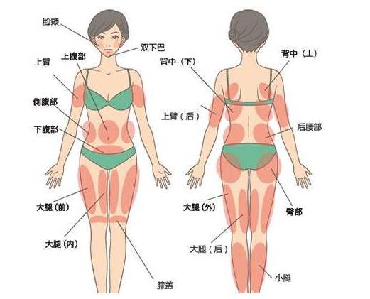 全身吸脂包括哪些部位,可以一次性瘦身吗