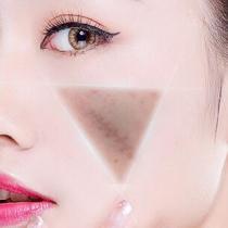 射频祛疤手术痛吗