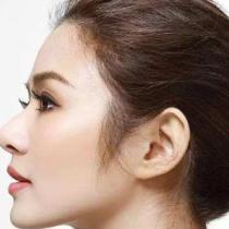 玻尿酸和手术隆鼻要什么区别呢