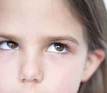 眼睛斜视矫正手术会留疤吗