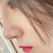 耳软骨垫鼻尖的效果可以维持多久