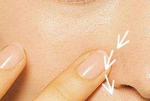 鼻翼两侧的红血丝是怎么造成的,有什么方法解决呢