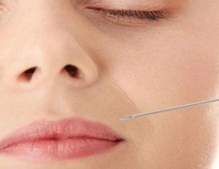 鼻唇沟填充可以用哪些材料呢
