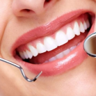 冷光美白牙齿有副作用吗,副作用大吗