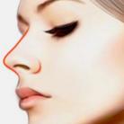 隆鼻后的疤痕增生会自愈吗