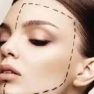 面部线雕有什么好处呢