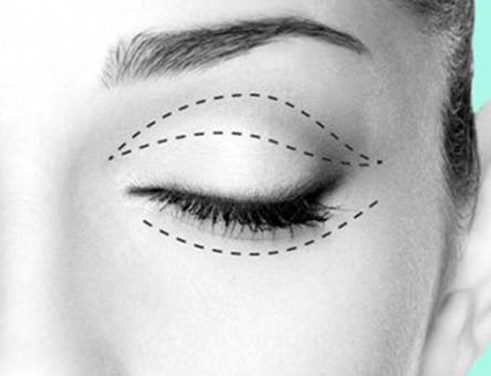 哪些情况下需要做双眼皮修复呢