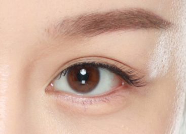 双眼皮手术后有哪些饮食禁忌呢