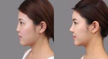 杭州悦可隆鼻有哪些方式呢?各种隆鼻方式的优缺点是什么?...