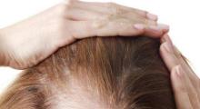 广州溢脂性脱发怎么治?植发有效果吗?...