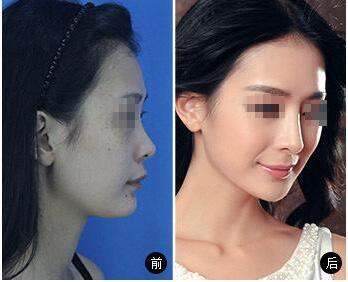 线雕隆鼻以后还能做假体隆鼻吗?