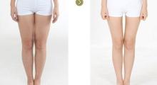 大腿吸脂有什么优势呢?...