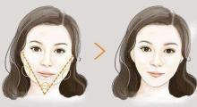 上海下颌角整形后脸部会不对称吗?...