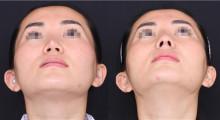 玻尿酸隆鼻导致后遗症的常见两种原因...