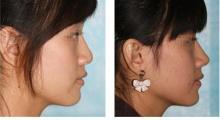 隆鼻修复手术是针对哪些隆鼻后出现的问题?...