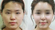 瘦脸吸脂 成就气质V脸的捷径...