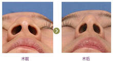 辽宁协和整形外科医院做鼻翼缩小手术后的护理事项...
