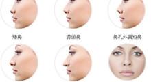 辽宁协和整形外科医院告诉你隆鼻手术怎么护理才能更快恢复...