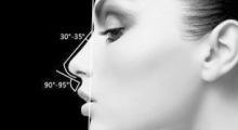 上海诺诗雅隆鼻手术后大概需要多久才能拆线呢?...