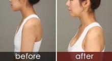 成都美莱自体脂肪隆胸术后的注意事项有哪些。...