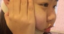 长沙亚韩做面部吸脂多少钱?效果怎么样?...