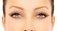 秦皇岛纪辉医院告诉你开双眼皮的恢复时间会受什么因素影响...
