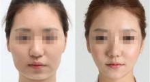 关于吸脂瘦脸会不会有副作用的问题天津华美医院解析...