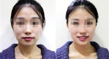 上海复旦大学医院做假体隆鼻 让美丽鼻子逆转重生...