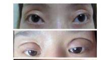 双眼皮做宽了如何修复?有广州海峡双眼皮修复多少钱?...