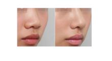 上海鹏爱告诉你,为什么自体软骨隆鼻手术受欢迎?...