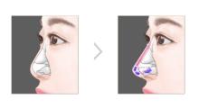 重庆艺星做背部吸脂多少钱?背部能做吸脂手术吗?...