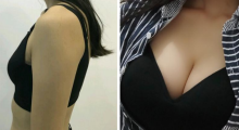 武汉伊美馨自体脂肪丰胸手术风险高吗?...