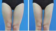 腿部吸脂减掉让人烦恼的肌肉...