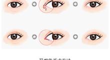 上海美之源小眼矫正的5中手术方法,让你有用迷人的双眼!...
